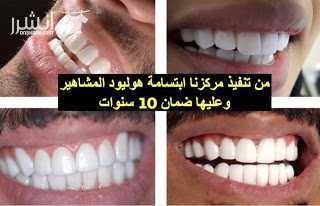 خصم 50% على قسم الاسنان والليزر والبشرة والتجميل <br> <br>1- ⭐ ليزر...