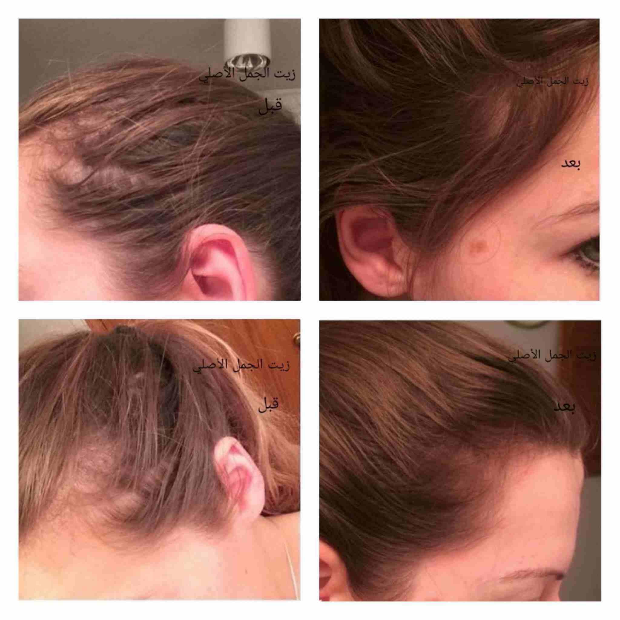 شعرك بكت ؟🙄 عندك فراغات كبيرة بشعرك ؟😔 عندك مشكلة بأنبات الشعر ؟🤔...