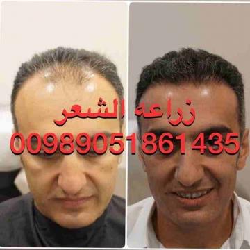 - زراعه الشعر في ايران اهواز  أقصي درجه كثافه للشعر  نقل من...